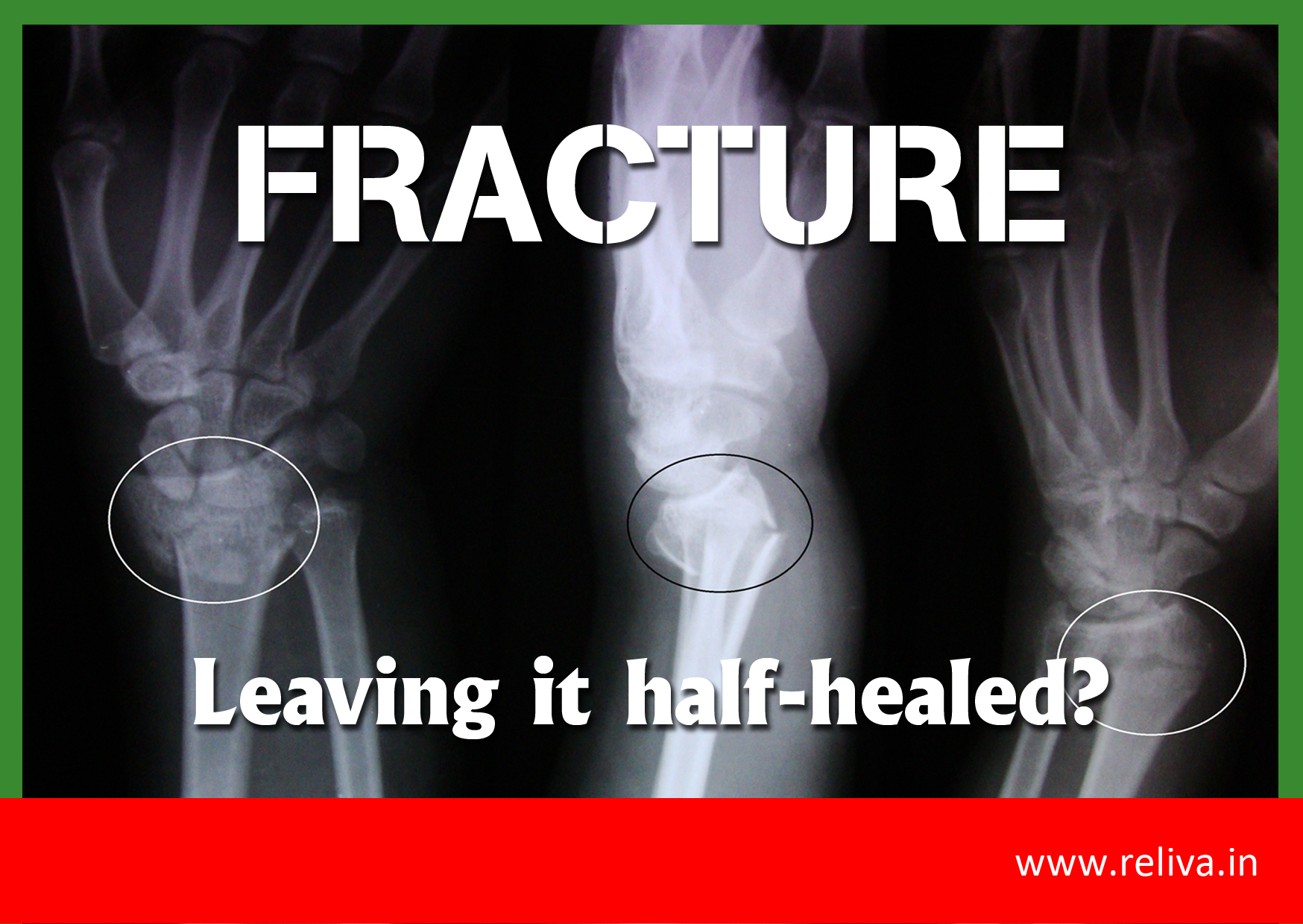 Fracture: Leaving it Half healed