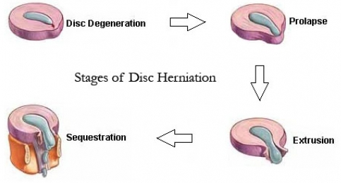Spine Disc herniation stages