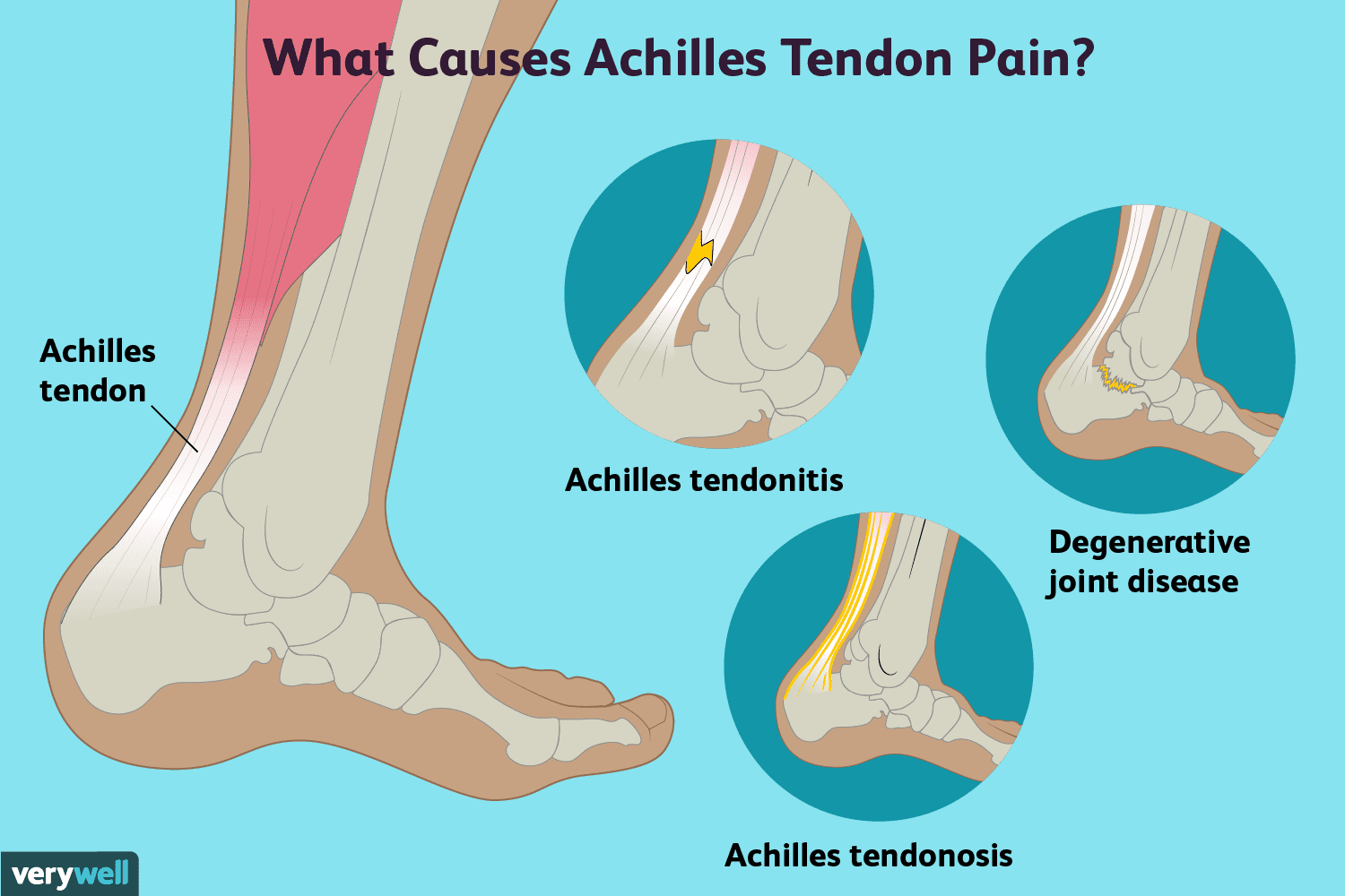 Heel Pain | ReLiva Physiotherapy \u0026 Rehab