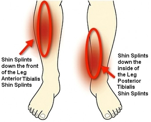 shin pain, shin splints
