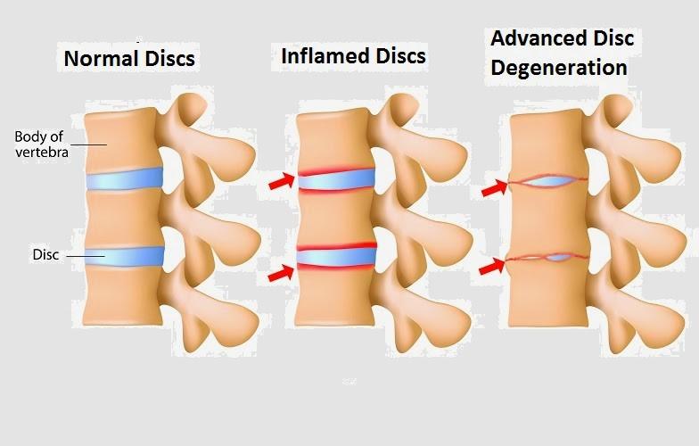 Spondylitis or Spondyloarthritis