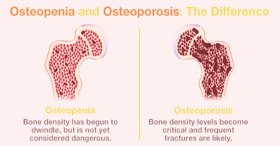 Difference between Osteopenia & Osteoporosis
