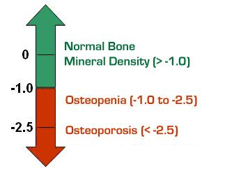 Growth of Osteoporosis
